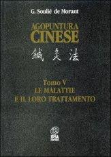 Agopuntura Cinese